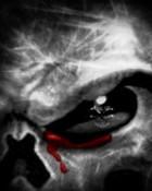 Bloody Eye.jpg